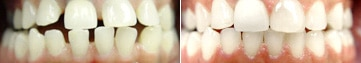 Invisalign treatment for teeth spacing issues - before and after