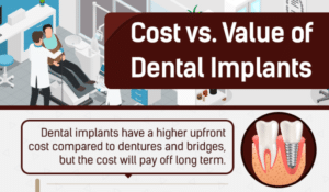 cost vs value of dental implants